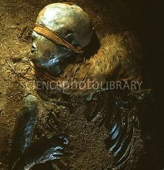 "Mummified head and torso of Windeby Girl, a ""bog body"" dated to the Roman Iron Age. Tollund Man, Bog Body, Iron Age, Braided Leather, Display, Image, Art, Billboard"