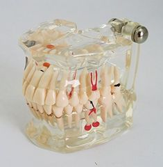 DR WHITE Dental Teeth Model Orange,Transparent Dental Implant Disease Teeth Model Dentist Standard Pathological Removable Tooth Teaching Tools for Student