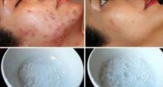 Vuoi eliminare macchie, rughe, punti neri e brufoli dalla pelle? Il rimedio che ti descriviamo [Leggi Tutto...]