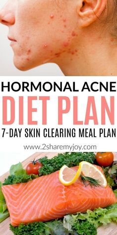 Are confused about how to eat when you suffer from acne? Does it seem like everything could cause acne? Are you wondering why your hormones are so out of balance? Try his gluten free, dairy free, sugar free meal plan and clear up your hormonal acne f Foods For Clear Skin, Clear Skin Diet, How To Clear Skin, Detox Water For Clear Skin, Best Foods For Skin, Foods Good For Acne, Diet For Glowing Skin, Food For Acne, Food Good For Skin