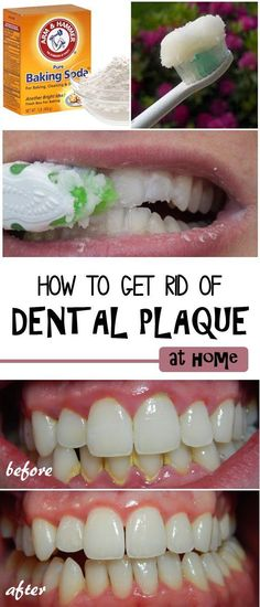 Maintaining good oral health is important for overall health and confidence, and plaque is a common problem. You may notice it as a hard yellowish layer, also called calculus, on your teeth. Removing plaque usually requires a visit to your dentist, however you can remove it at yourself at home using natural remedies.: #dentalplaqueremoval #plaqueonteeth