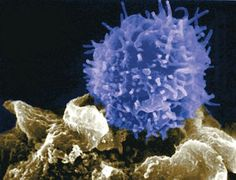 Novos tratamentos – Imunoterapia com Nivolumab (Opdivo) se mostrou eficaz no tratamento do câncer de cabeça e pescoço.