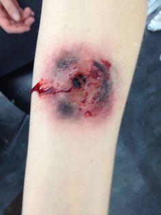 Lee's gun shot wound to the leg