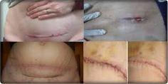Bagaimana cara mengobati luka operasi caesar agar cepat kering? Ialah qnc jelly gamat sebagai solusi terbaik untuk mengatasi berbagai jenis luka bekas operasi