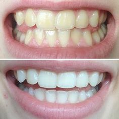 Pin on 家事 Natural Teeth Whitening, Whitening Kit, Make Beauty, Beauty Care, Human Body Structure, Teeth Care, Skin Care, Dentistry, Body Care