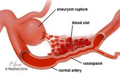 When red blood cells break down, toxins can cause the walls of arteries nearby to contract and spasm. The larger the SAH, the higher the risk of vasospasm Subarachnoid Hemorrhage, Brain Aneurysm, Cerebrospinal Fluid, Hypermobility, Human Anatomy And Physiology, Red Blood Cells, Ehlers Danlos Syndrome, Phlebotomy, Head And Neck