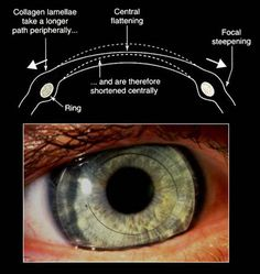 Intacs rings flatten the central cornea in keratoconus by an amount proportional to the thickness of the two 150 degree arc segments.