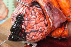 Massive subdural hematoma when a man (being chased by an enemy) stumbled and fell