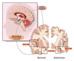 Dementia is a technical term for loss of memory.This may be found as a feature in so many diseases. But two of the leading causes of dementia are Alzheimer's disease Cerebral Cortex, Degenerative Disease, Ayurvedic Herbs, Ayurveda, Sleep Help, How To Make Beer, Why People, Alzheimers, Biology