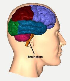 Traumatic Brain Injury Resource Guide - Brainstem