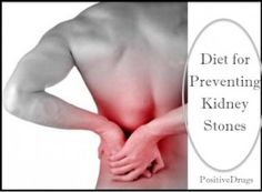 Diet for Preventing Kidney Stones. People who live in the desert are at higher risk.