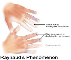 Raynauds causes inadequate blood flow that can cause cold fingers. Heated gloves can help provide relief.