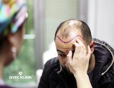 Saç ekimine yönüne göre sac ekimi ile doğal ve sağlıklı saçlarınıza yeniden kavusabilirsiniz  ☎02122155535  #estetik #saçekimi #isvecklinik #hairtransplant #saç
