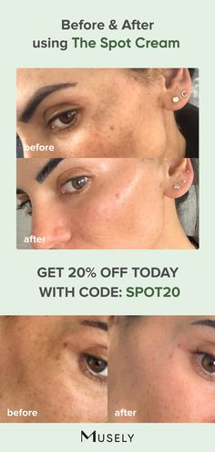 Excellent beauty tips tips are offered on our site. Have a look and you wont be sorry you did. Brown Spots On Skin, Brown Spots On Face, Brown Skin, Skin Spots, Beauty Care, Beauty Skin, Beauty Hacks, Beauty Tips, Beauty Makeup