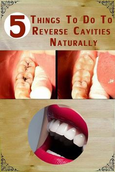 5 things to do to Reverse Cavities Naturally | Natural Solutions