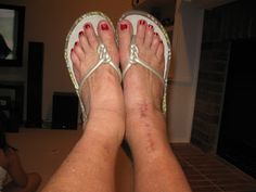 My Ankle Replacement Ankle Arthritis, Ankle Surgery, Healthy, Health