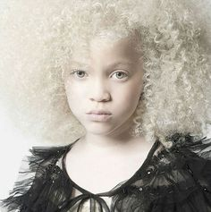 Albinism is a disorder characterized by a complete or partial lack of pigment in the skin, eyes, and hair. People with albinism look like gorgeous girl model Ava Clarke whom you see in the picture. Stunning Eyes, Stunningly Beautiful, Natural Hair Care, Natural Hair Styles, Pretty People, Beautiful People, Beautiful Children, Beautiful Women, Albino Girl