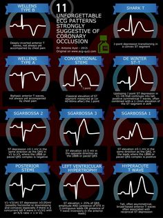 ekg infographic - Google Search                                                                                                                                                                                 More