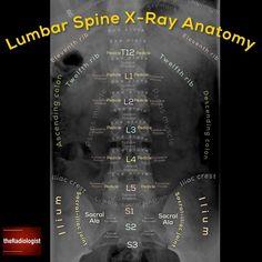 Lumbar spine X-Ray anatomy Radiology Schools, Radiology Student, Radiology Imaging, Medical Imaging, Radiologic Technology, Interventional Radiology, Family Nurse Practitioner, Trauma, Spine Health