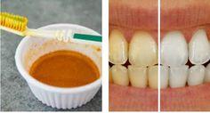 Kuhinja i Recepti: Izbijelite zube i izliječite desni sa samo JEDNOM namirnicom: Posebno za pušaće i ljubitelje kafe!