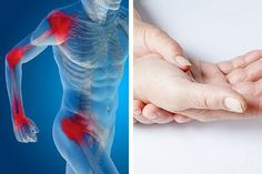 Alimentazione più adatta e consigli per prendersi cura della cartilagine e rigenerarla in modo sano