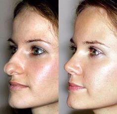 Rhinoplasty Surgery, Nose Surgery, Nose Reshaping, Madam Glam, Hyderabad, Face Profile, Plastic Surgery, Beauty Care, Beautiful