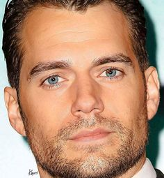 I have the same eyes - two colors in one eye. One of the reasons I love Henry!!