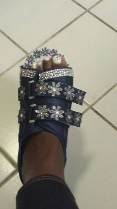 So I Blinged out my ortho shoe since I have to wear it for 4 weeks