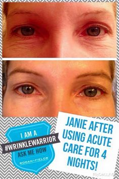 Erase your wrinkles overnight with Rodan and Fields Acute Care! email me for details tyelerpotter@gmail.com