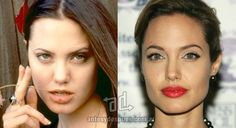 Angelina Jolie Plastic Surgery Before and After - Nose Job, Top Lip Fillers and Eyelid Surgery Celebrities Before And After, Celebrities Then And Now, Angelina Jolie Nose, Bad Plastic Surgeries, Eyelid Surgery, Nose Surgery, Celebrity Plastic Surgery, Star Wars, Photoshop