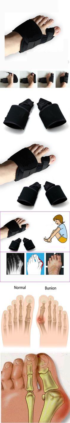 2pcs=1pairSoft Bunion Corrector Toe Separator Splint Correction System Medical Device Hallux Valgus Foot Care Pedicure Orthotics