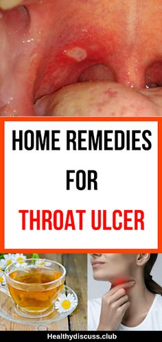 Home remedies for throat ulcer - Everything You Need To Know About Oral Health Oral Health, Dental Health, Dental Care, Health Care, Health Remedies, Home Remedies, Natural Remedies, Holistic Remedies, Throat Ulcers