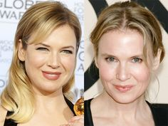 Your jaw will drop at Renée Zellweger's before and after—the Jerry Maguire star is basically unrecognizable: http://beautyeditor.ca/2013/11/29/renee-zellweger-before-and-after/