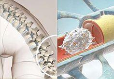 Das Zentrale Nervensystem. Multiple Sklerose verstehen. #amselev #ms #multiplesklerose