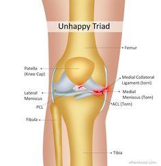 Unhappy Triad or Blown Knee or Terrible Triad Read: http://www.epainassist.com/sports-injuries/knee-injuries/unhappy-triad-or-blown-knee-or-terrible-triad