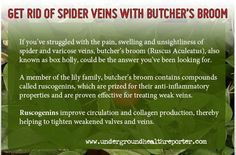 Question for YOU ❥➥❥ IF you have Spider Veins, do you think YOU would consider trying Apple cider ... thanks @UndergroundHealthReporter ... pinned with Pinvolve