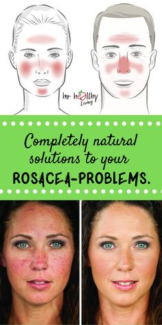 Completely natural solutions to your Rosacea-problems rosacea skin care - Skin Care Red Face Remedies, Natural Remedies For Rosacea, Rosacea Remedies, Home Remedies For Acne, Natural Treatments, Young Living, Henna Designs, Rosacea