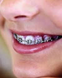 Orthodontist Henderson: Braces orthodontisthenderson.com