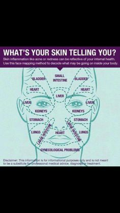 Listen up! What is your skin telling you? Skin inflammation like acne or redness can be a reflection of your internal health. Use this face mapping system to decode what may be going on inside your body. health & wellness tips skin care internal hea Health Tips, Health And Wellness, Health And Beauty, Wellness Tips, Health Fitness, Personal Wellness, Holistic Wellness, Men's Fitness, Healthy Beauty