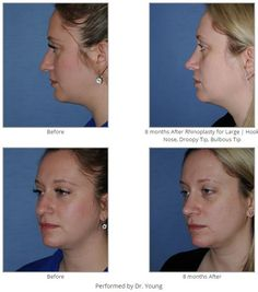 Before & 8 months After Rhinoplasty for Large | Hook Nose, Droopy Tip, Bulbous Tip