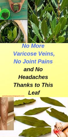 Natural Remedies Varicose Veins Laurel is a common ingredient in numerous households, but not many are aware that its leaves are extremely beneficial and can be used for preparing medicinal oil which boosts health in many ways Varicose Vein Removal, Varicose Vein Remedy, Varicose Veins, What Causes Arthritis, Rheumatoid Arthritis Symptoms, Severe Headache, Headache Remedies, Natural Health Remedies, Health