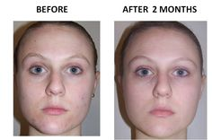 Use the Rodan + Fields UNBLEMISH regimen to achieve results like this! Say NO to acne and acne scarring, and start saying YES to a more beautiful, healthy, even complexion. The time is now!