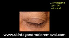 What Is The Best Skin tag Remover? Mole Removal Cream, Natural Mole Removal, Tag Remover, Skin Tag, Good Skin, How To Remove, Good Things, Tags, Beauty