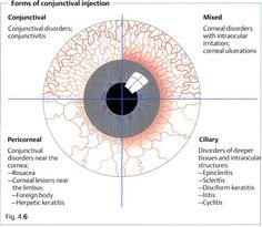 conjunctival injection, ciliary injection