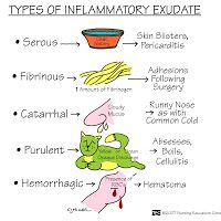 Types of Inflammatory Exudate