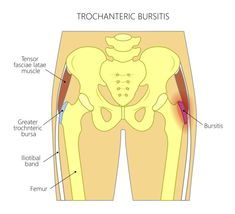 So you have hip pain. Find out why and what you can do to relieve Bursitis Hip Pain. Hip Bursitis Exercises, Bursitis Hip, Hip Stretches, Muscle Stretches, Knee Exercises, Natural Cure For Arthritis, Natural Cures, Natural Healing, Fitness Workouts