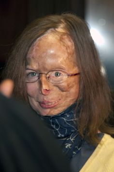 Acid attack victim Patricia Lefranc is pictured ahead of the assize trial of Richard Remes, outside the Assize Court of Brussels on March 21, 2012. Richard Remes stands accused of attempted murder, after he attacked his ex-girlfriend Patricia Lefranc by throwing acid in her face. (OLIVIER VIN/AFP/Getty Images)