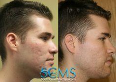 South Coast MedSpa Laser Acne Scar Removal how to get rid of acne scars Laser For Acne Scars, Laser Acne Scar Removal, Acne Scar Removal Treatment, Best Solution For Acne, Laser Skin Rejuvenation, Adult Acne Treatments, Pimple Scars, Skin Resurfacing, Acne Causes