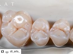 #Repost @dt_arts_ • • • • • • Reposted from @bagrat.sargsyan6 - @mpfbrush #виниры #noritake #ceramica #зубы #зубнойтехник #dental #dentist…