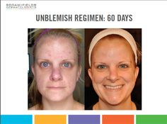 Rodan + Fields before and after - Google Search
